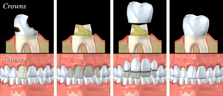 Porcelain Crowns and Veneers - Andover Family Dentistry