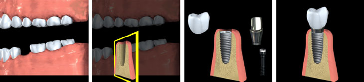 Dental Implants - Andover Family Dentistry